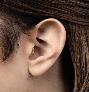 Kanalno slušno pomagalo nošeno u jednom uhu