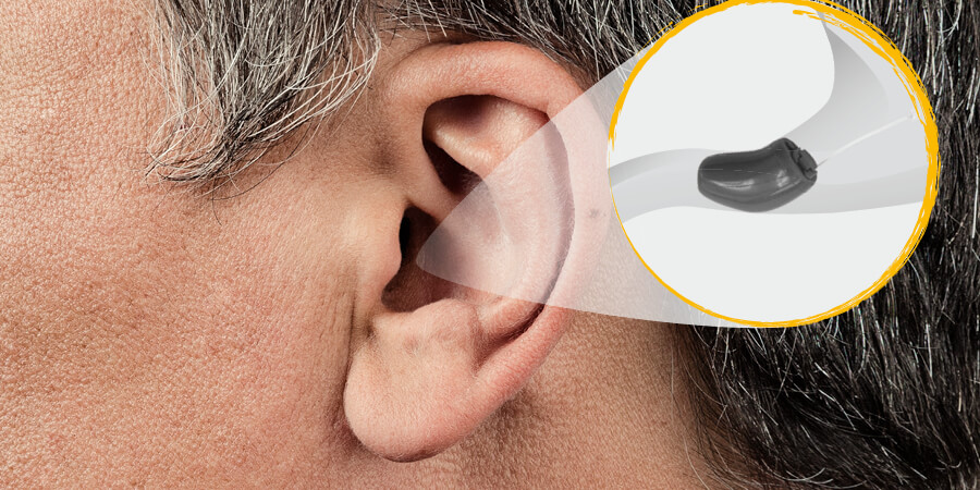 Uho sa shematskim prikazom slušnog pomagala